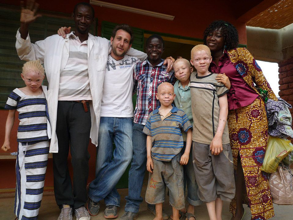 Court métrage Naître albinos